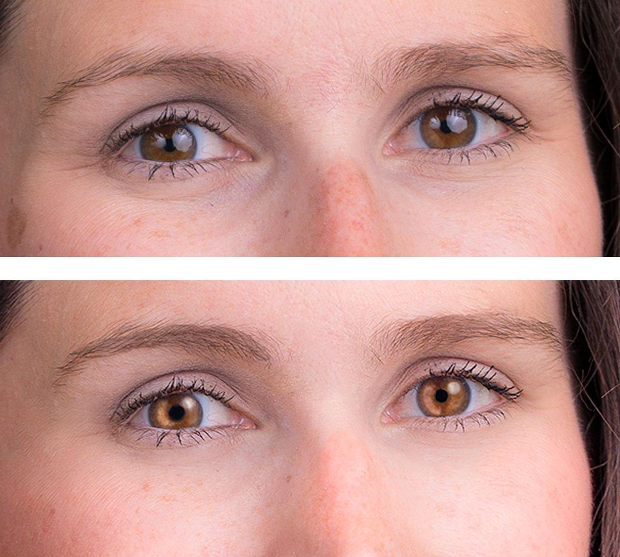 Portrait_Eye_Retouching